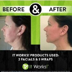 Before and After It Works Facials and Wraps.