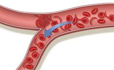 Vascular stiffness is an extremely serious problem. Arteries in the interior walls of . Brain Hemorrhage, Interior Walls, Health Education, Aloe Vera, Healthy Lifestyle, Health Care, Health Fitness, Skin Care, Ruffles