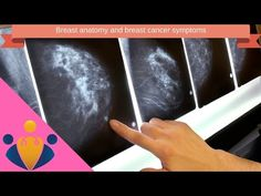 Breast Cancer: Causes, Symptoms and Treatments 🎁 🎁 🎁 - WATCH VIDEO HERE -> http://bestcancer.solutions/breast-cancer-causes-symptoms-and-treatments-%f0%9f%8e%81-%f0%9f%8e%81-%f0%9f%8e%81    *** different causes of cancer ***   Breast Cancer: Causes, Symptoms and Treatments: Breast cancer usually starts off in the inner lining of milk ducts or the lobules that supply them with milk. A malignant tumor can spread to other parts of the body. A breast cancer that started