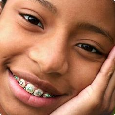 How to know if your child is ready for braces | Working Mother
