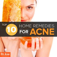 Home remedies for acne http://www.draxe.com #health #Holistic #natural