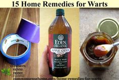 15 Home Remedies for Warts - Cheap and easy to use, these home wart treatments will help you get rid of warts on hand and fingers, plantar warts and more. Home Remedies For Warts, Warts Remedy, Sinus Infection Remedies, Planter Warts Remedies, Natural Headache Remedies, Natural Home Remedies, Herbal Remedies, Health Remedies, Hair Remedies