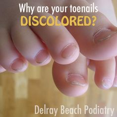Find out why your toenails may be discolored in this informative podiatry blog! #Toenails #Nails