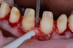 Restorative Dentistry, Dental Art, Perfect Smile, Surgery, Tooth, Cases, Club, Vegetables