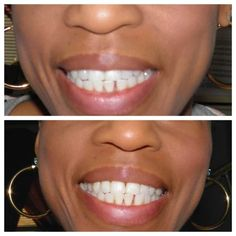 Smile Brilliant Teeth Whiting Gel Application System Wow .. its amazing what you can find while searching out images for cosmetic dentistry and more