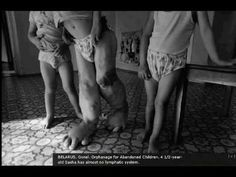 On April 1986 a giant nuclear disaster occurred at the Chernobyl Nuclear Power Plant in Ukraine. This is an image of the continuing effects of the nuclear fallout taken by Paul Fusco. Chernobyl Nuclear Power Plant, Chernobyl Disaster, Nuclear Energy, Chernobyl 1986, Nuclear Bomb, Nagasaki, Hiroshima, Fukushima, Photo Choc