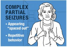 Complex Partial Seizure focal - YouTube