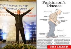 The picture on the left hand side characterizes PD posture which I should have looked like without the power of dance. On the right hand side is the result of the power of dance.  התמונה השמאלית - כך הייתי צריך להראות התמונה הימנית - כך בפועל הניגודיות מדברת בפני עצמה-אומרת הכל
