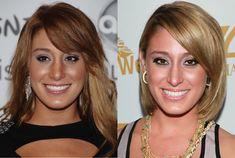 bachelor contestants plastic surgery - Google Search
