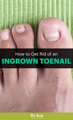 Get rid of an ingrown toenail quickly and naturally in these steps.