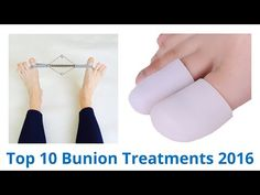 Ways to Ease Your Bunions Without Surgery - YouTube