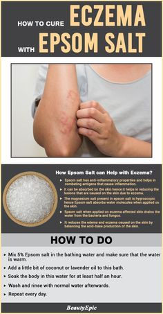 Epsom Salt for Eczema: Try This Effective Home Remedies