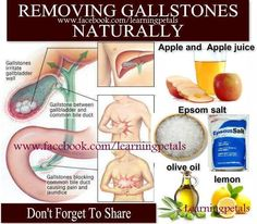 """Removing gallstones naturally * """"Even if you don't have any symptoms of gallstones, you still might have some. It's always good to give your gall bladder a clean-up now and then."""" --- (Click on the picture to read the instructions, in the full photo caption on Facebook.)"""