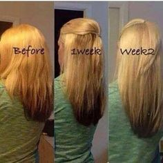 1000+ ideas about Hair Loss During Pregnancy on Pinterest ...