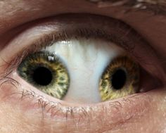 Pupula Duplex Is A Horrifying And Rare Condition