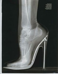 What your bones look like in high heels. And men think THEY are the tough ones....