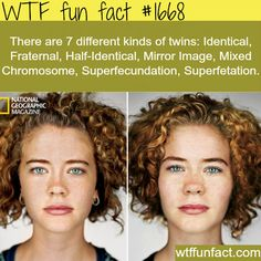 WTF Facts : funny, interesting & weird facts I think there should be an external twin, where two people who aren't related, look alike and their personalities are really similar. Wtf Fun Facts, True Facts, Funny Facts, Random Facts, Crazy Facts, Funny Quotes, Random Stuff, Funny Stuff, Real Facts