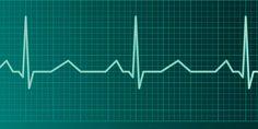 Motnje srčnega ritma
