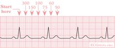 heart rate on ekg strip   Calculation of the heart rate using the squares counting method