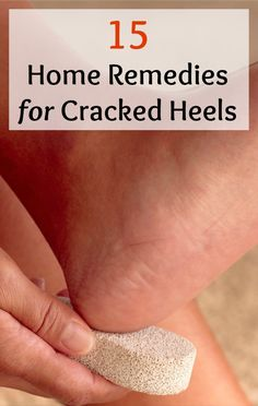 Cracked heels are one of the most common problems that can arise if you don't pay proper attention. In most cases, this is purely a cosmetic issue that does not cause any health problems. However, in severe cases, these cracks can get very deep and when you walk or stand this can cause some pain and discomfort. Here are 15 Home Remedies for Cracked Heels - Selfcarers