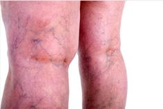 16 Home Remedies For Varicose Veins That Really Work Varicose veins are twisted and enlarged veins usually found on legs. Excessive pressure on the veins especially when standing and sitting is the main reason for the enlargement of these superfic Varicose Veins Causes, Varicose Vein Remedy, Varicose Veins Treatment, Natural Headache Remedies, Natural Health Remedies, Herbal Remedies, Remedies For Menstrual Cramps, Cramp Remedies, Back To Nature