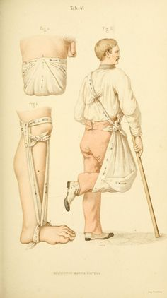 Manual of Surgical Bandages, Devices and Dressings, 1859 (https://www.pinterest.com/pin/287386019948326046). Tab. 41.