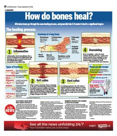 How do bones heal?  Very cool explanation of how bones heal with colorful pictures