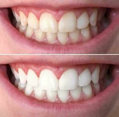 A brighter, whiter smile is just a brushing away! No trays or strips, no sensitivity! Dentist recommended solution to an affordable way to a plaque free, white smile! Nuskin Toothpaste, Ap 24 Whitening Toothpaste, Dental Cosmetics, Dental Assistant Jobs, White Teeth, Cosmetic Dentistry, Anti Aging Skin Care, Beauty Routines, Beauty Skin