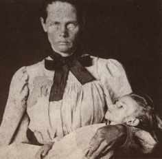 Boer Woman In a British Concentration Camp Cradling Her Dead Child