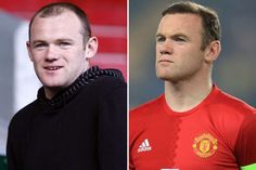 Wayne Rooney: Before and after hair transplant