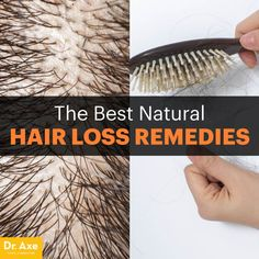 The Best Natural Hair Loss Remedies You Should Try - Dr. Axe