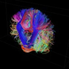 BAM: brain activity mapping. Mapping how the brain thinks