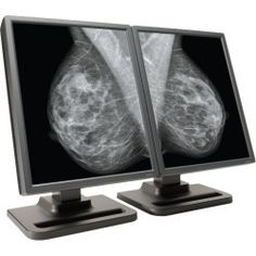5MP Grayscale NDS Dome E5-2 Radiology Display is built for the most demanding diagnostic applications, including mammography, CR, and DR with unsurpassed image quality and resolution.