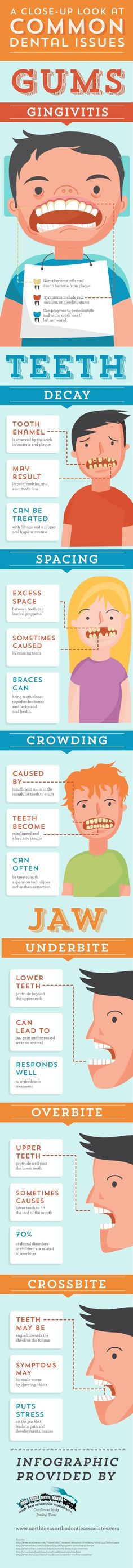 Dental Information about  Gums #FrandsendDental