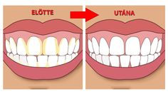 Natural Teeth Whitening Remedies Improper brushing can lead to plaque formation that, when ignored, forms tartar, a solidified form of plaque. Know how to remove tartar Teeth Whitening Remedies, Natural Teeth Whitening, Dental Health, Dental Care, Oral Health, Gum Health, Teeth Health, Tartar Removal, Gum Disease Treatment