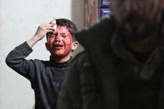 DERUWA: UN-Vizegeneralsekretär: Bisher sind in Syrien 250....