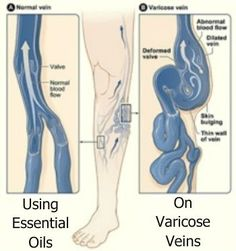 Varicose Vein Illustration - Essential OIls for Varicose Veins