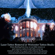 Laser Tattoo Removal at Worcester Tattoo Studio