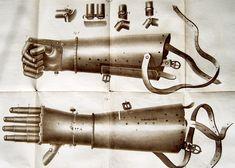 History of War Prosthetics