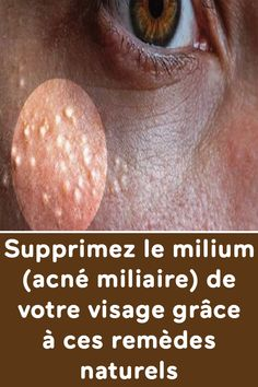 Remove milium (miliary acne) from your face with these natural remedies Beauty Care, Diy Beauty, Beauty Hacks, Diy Skin Care, Skin Care Tips, Natural Face Moisturizer, Beauty Tips For Face, Younger Looking Skin, Best Anti Aging