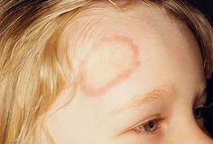 Ringworm - it doesn't look pretty at all, but it can be treated.