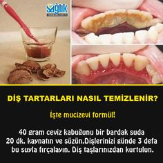 Walnussschale für Zahnstein Walnut shell for tartar, # for shell Oral Health, Dental Health, Health And Wellness, Health Fitness, Winter Beauty Tips, Daily Beauty Tips, Healthy Beauty, Health And Beauty, Healthy Habits