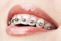 Orthodontic braces help you to get aligned and straightened teeth. We have experts dentists who have successfully done Orthodontic Braces on many of our patients. Visit us if you require any Orthodontic treatment for your teeth. Dental Braces, Teeth Braces, Dental Care, Transparent Braces, Ceramic Braces, Dental Pictures, Braces Cost, Types Of Braces, Teeth Alignment