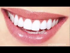 Hollywood smile Lebanon Beirut lumineers veneers Ferrari dental clinic Dr.H. Zarifeh