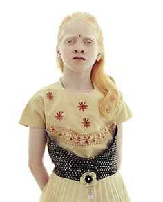 V.  Hemalatha, a girl from India with albinism, 2005. Photograpoher: Andreas Deffner