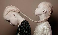 As gêmeas paulistanas Lara e Mara Bawar,de apenas 11 anos, são donas deuma beleza única que está dando o que falar. Elas são albinas, uma condição que causa a falta de pigmentação na pele e no cabelo. Em 2016, sua beleza ímpar foi eternizada pelas lentes dofotógrafo suíço Vinicius Terranova, num projeto que chamou de Flores Rara...