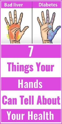 In many ways, your hands are the first things that a stranger will notice about you, be it while shaking hands or while handing something over. Remedies For Nausea, Natural Remedies For Migraines, Natural Sleep Remedies, Holistic Remedies, Natural Health Remedies, Psoriasis Remedies, Health And Fitness Articles, Health Advice, Health Fitness