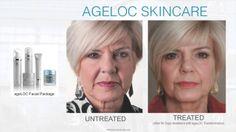 Face Treatment with Nu Skin Cosmetics  http://nuskin-vip.com/new-skin-nu-skin-cosmetics/