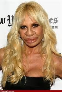 Plastic Surgery...Gone wrong...... on Pinterest