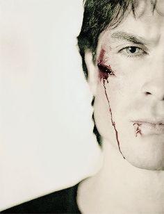 Poor Damon